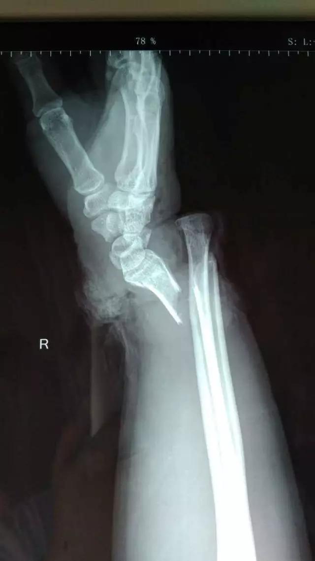 女工一不小心右手腕被卷进机器,绞得只剩一层皮!