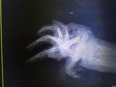 """女子左手被搅拌机""""咬""""断 连续8小时再植手术接回去"""