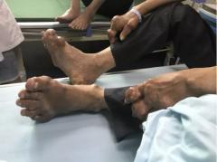 手脚长满痛风石,肿胀畸形!福州骨科针刀镜刮石除痛