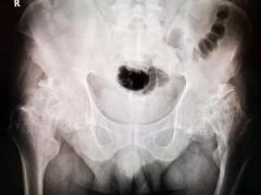 饮酒致股骨头坏死,福州骨科医院同期人工关节置换