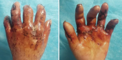厦门大爷五指被砸伤,抱着一丝希望在福州医院得到救治