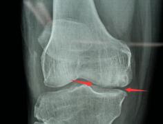 """福州依伯膝关节退化,专家""""换半个膝盖""""可下"""