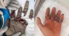 """机械""""咬""""掉两根手指,福州专家妙手接指全部成活"""