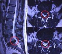 老教师腰椎间盘突出忍痛10年!微创椎间孔镜改善生活!