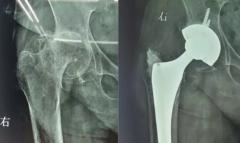 类风湿关节炎导致髋关节疼痛僵硬,关节置换后下地行走!