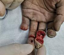 20岁年轻小伙被电锯截断手指,福州专家三小时精心再指手术妥善医治!